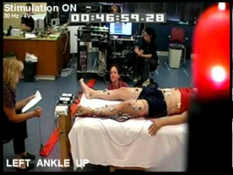 Patient Lower Body Movement with Epidural Stimulation