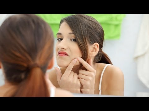 Skin Care: Acne / How to Get Rid of Blackheads