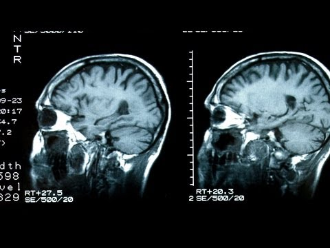What Causes Epilepsy? | Epilepsy and Seizure Disorders