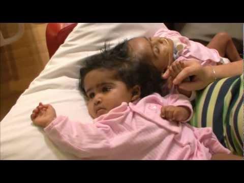 NOVA | Separating Twins | PBS