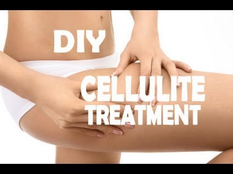 ✿ DIY ANTI-CELLULITE TREATMENT ✿ HOW TO GET RID OF CELLULITE!