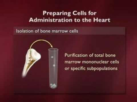 Stem Cells and the End of Aging Part 5 of 6