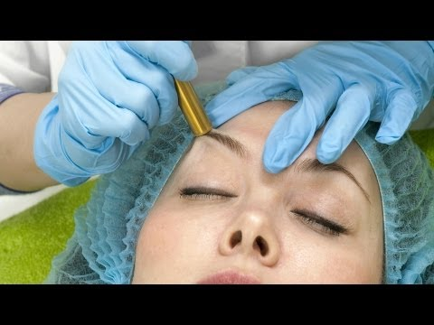 Skin Care: Does Microdermabrasion Get Rid of Acne Scars?