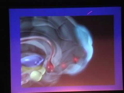 TEDxConejo - Wrap Up - 03/27/10