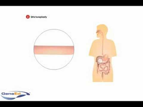 Surgical Treatment of Crohn's Disease