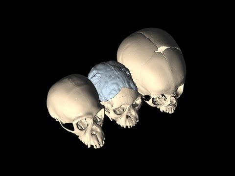 Science Bulletins: Our Ancient Relatives Born with Flexible Skulls